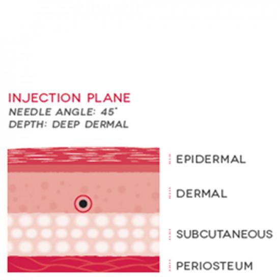Neauvia Intense Lips - Биоактивный филлер